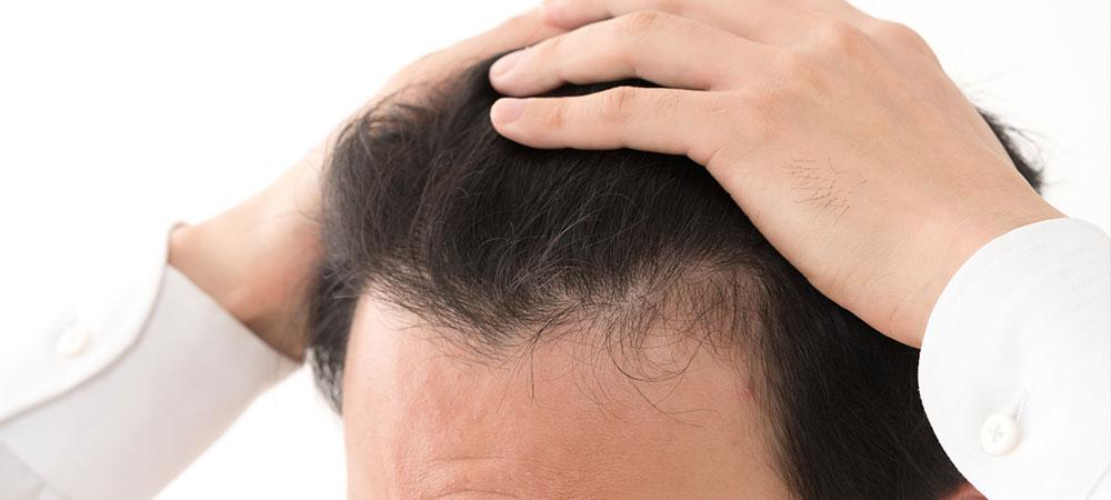 生え際の薄毛の治療