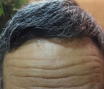 68歳男性